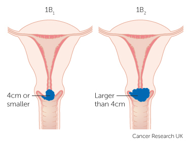 Treatment for early cervical cancer canadian cancer survivor network stage 2 ccuart Choice Image