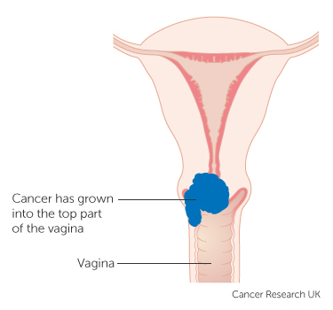 Treatment for early cervical cancer canadian cancer survivor network ccuart Choice Image