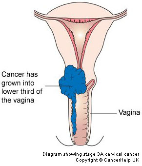 Treatment for advanced cervical cancer canadian cancer survivor stage 4 ccuart Image collections