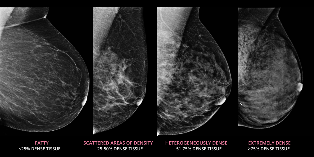 Side-by-side mammograms of four different breasts, illustrating each of the categories of breast density.