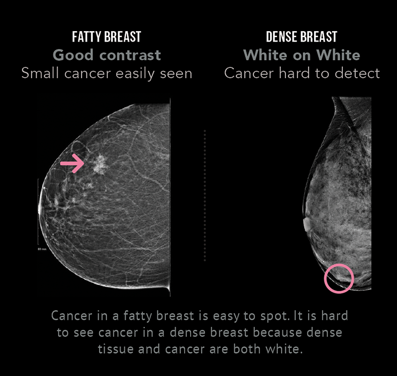 Cancer in a fatty breast is easy to spot with a mammogram, because there is good contrast between the cancer and the normal tissue. It is hard to see cancer in a mammogram of a dense breast, because dense breast tissue and cancer both appear as white.