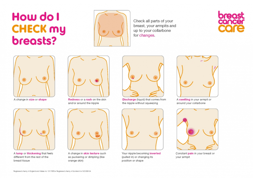 How do I check my breasts? Check all parts of your breast, your armpits and up to your collarbone for changes. Check for: a change in size or shape; redness or a rash on the skin and/or around the nipple; discharge (liquid) that comes from the nipple without squeezing; a swelling in your armpit or around your collarbone; a lump or thickening that feels different from the rest of the breast tissue; a change in skin texture such as puckering or dimpling (like orange skin); your nipple becoming inverted (pulled in) or changing its position or shape; and constant pain in your breast or your armpit.