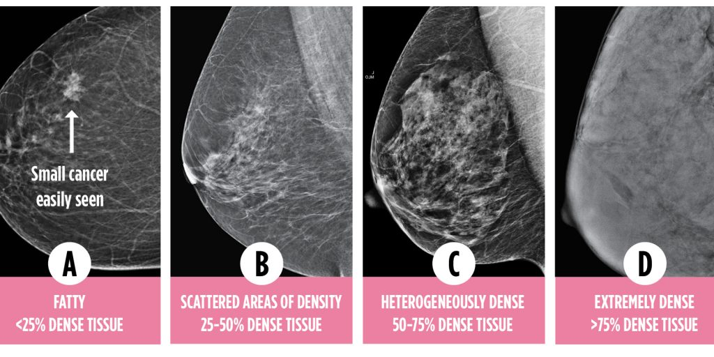 Early Detection Tellme My Breast Density Canadian Cancer